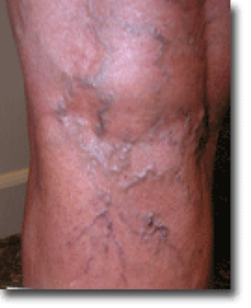 spider vein treatment Arlington, TX