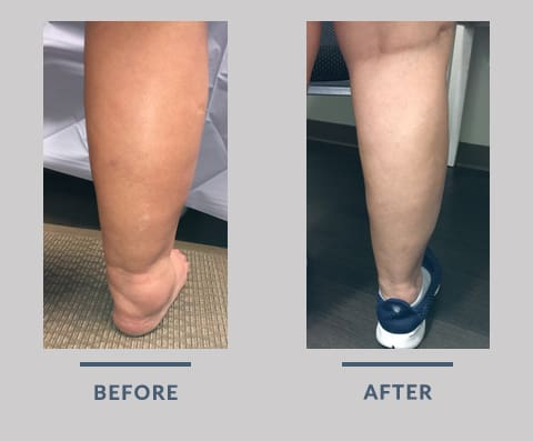 Leg Swelling Before and After