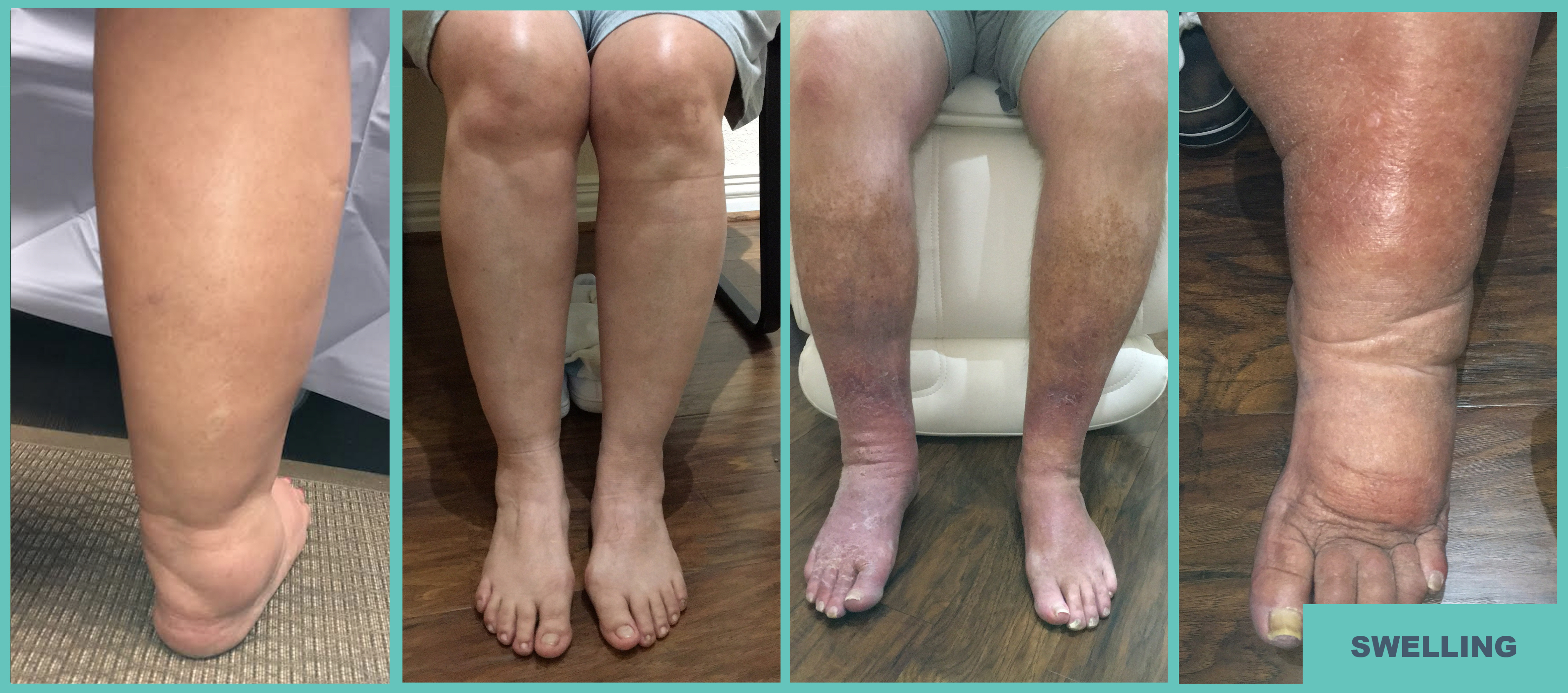 Atlas-Vein-Care-Swelling-2