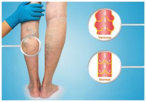 Vein Disease Symptoms Arlington TX