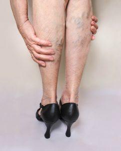 Leg Open Skin Sores Arlington TX