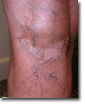 spider vein treatment Arlington, TX