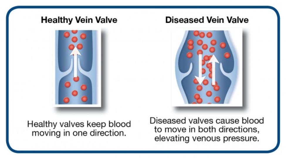 venous-reflux