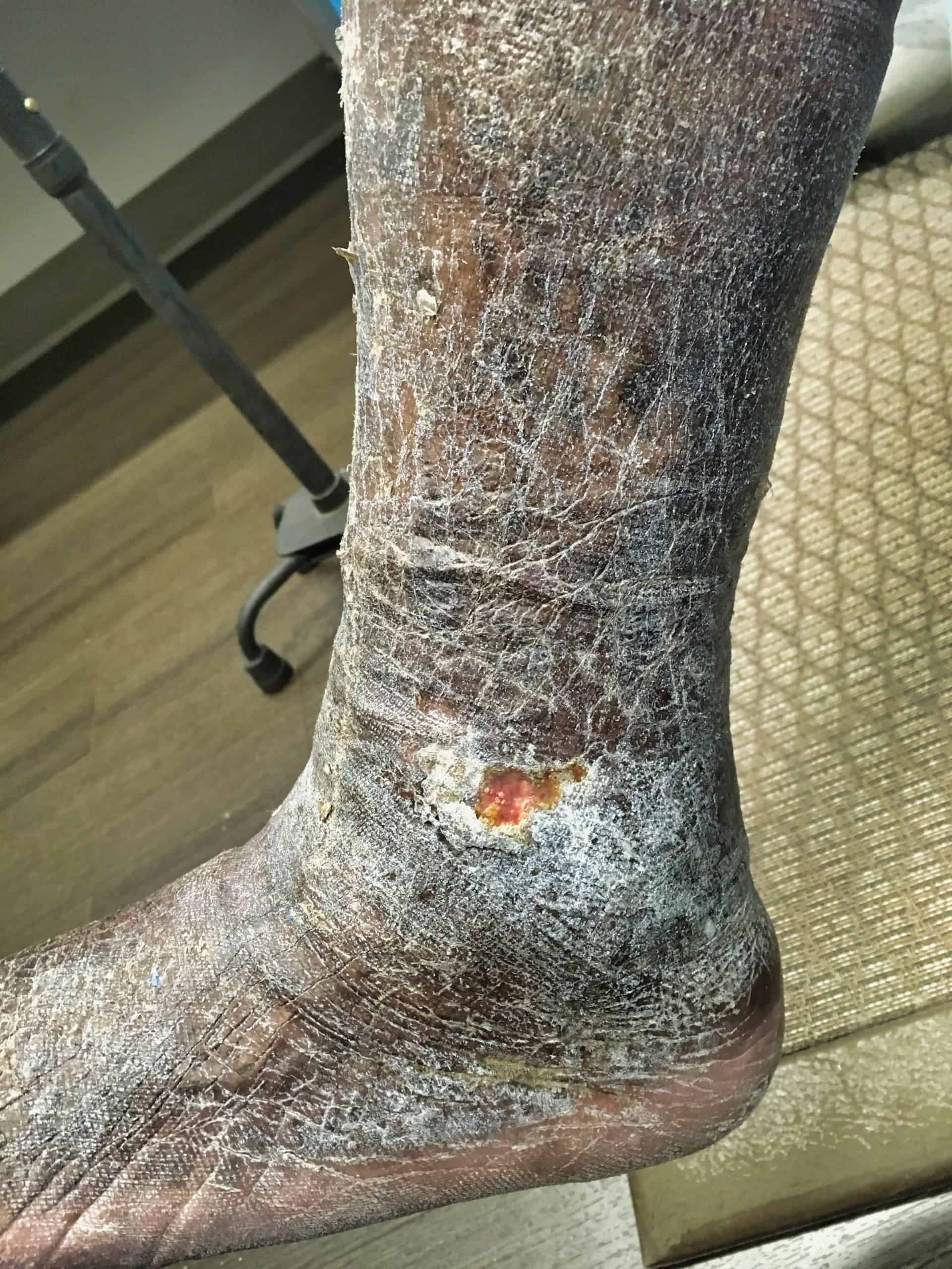 Ankle Ulcer and skin changes before