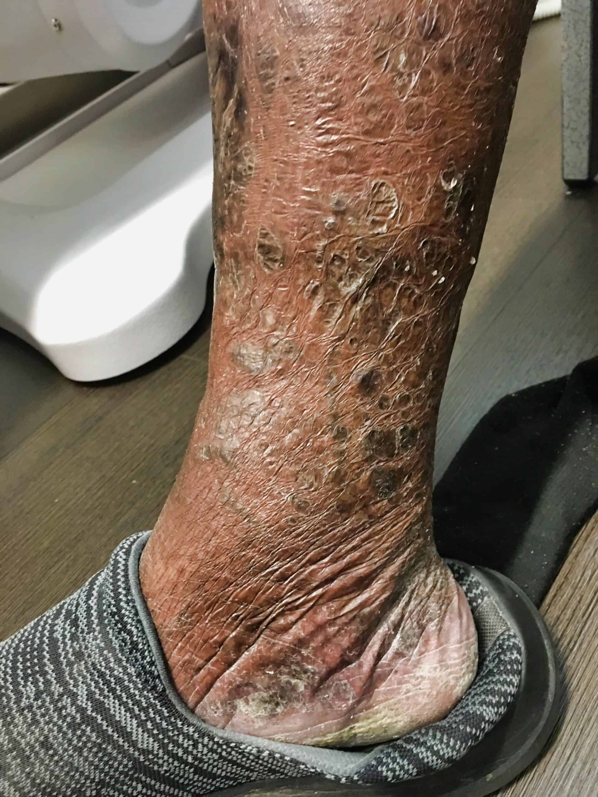 Ankle ulcer and skin changes 3 months after treatment