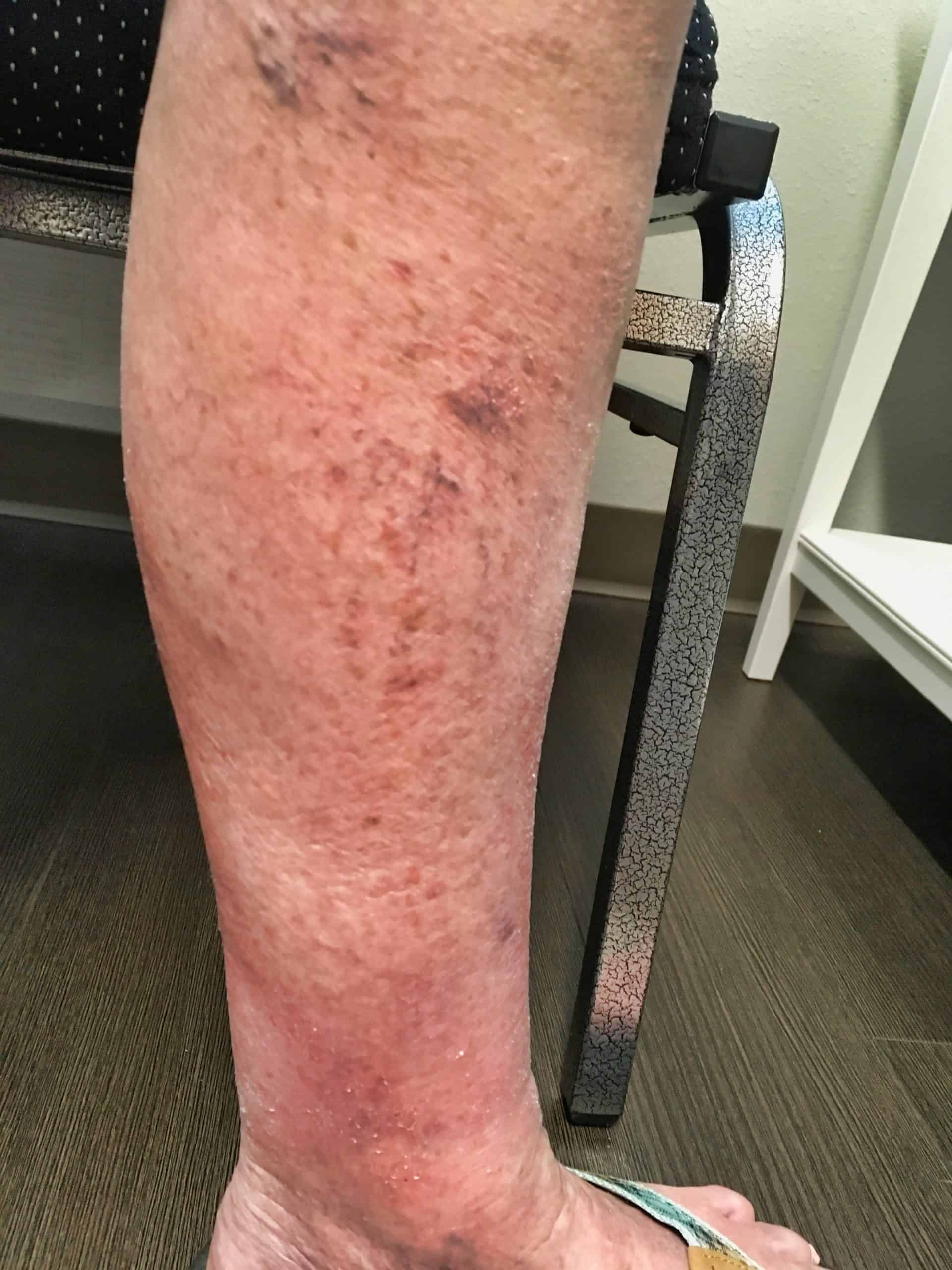 Discoloration and inflammation 6 months after treatment