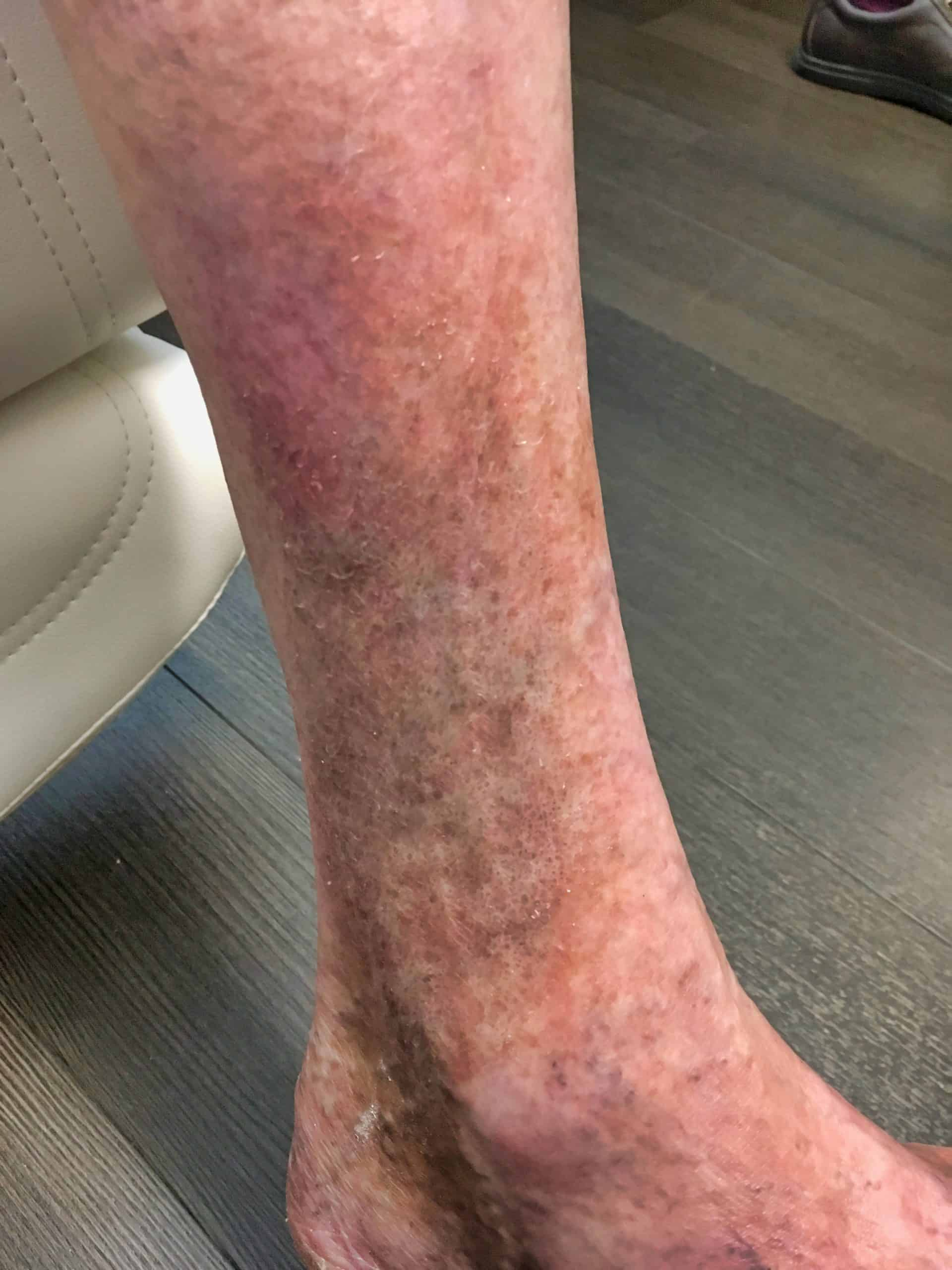 Leg ulcer and discoloration 5 months after treatment