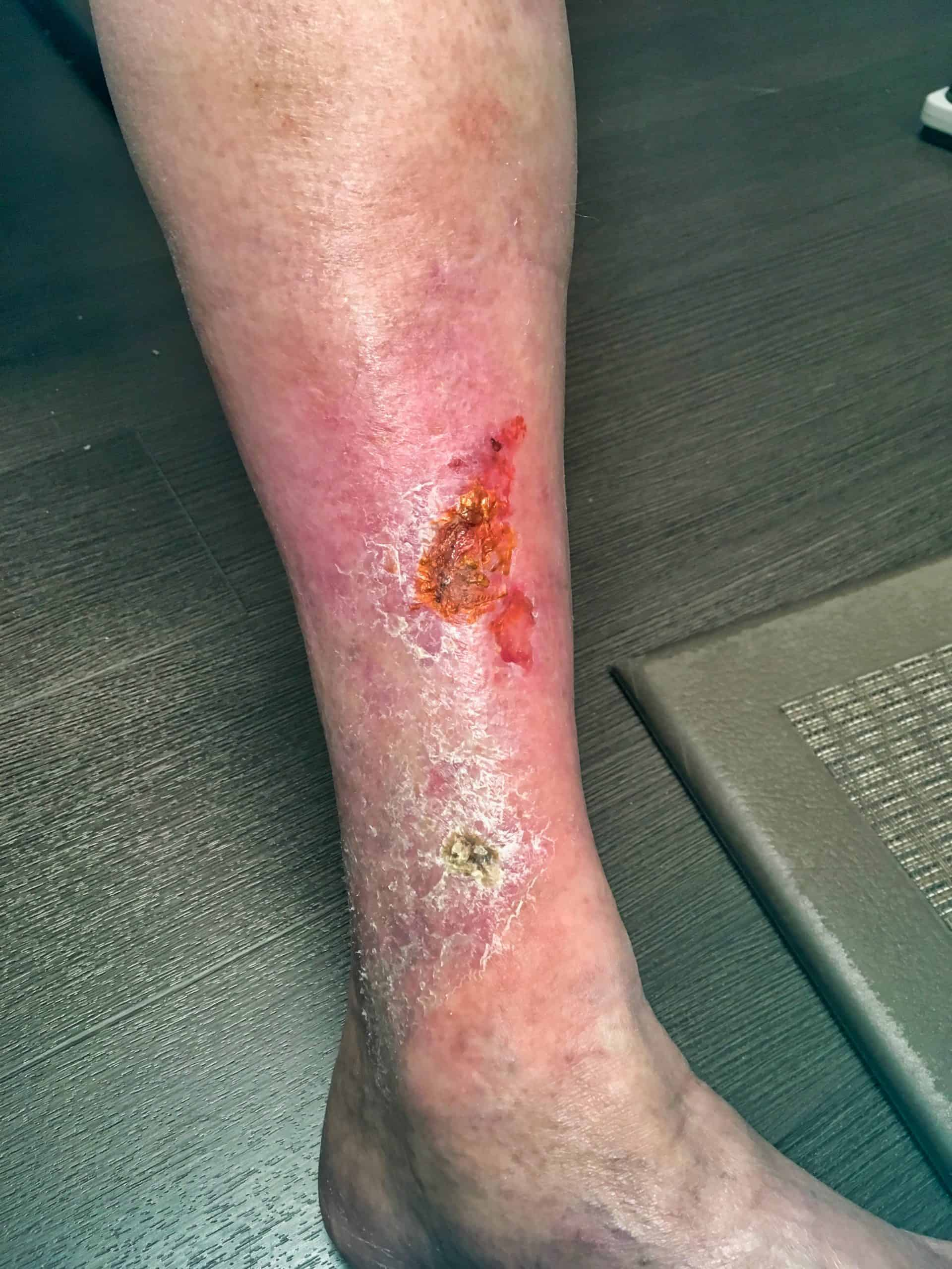 Leg ulcer and discoloration before