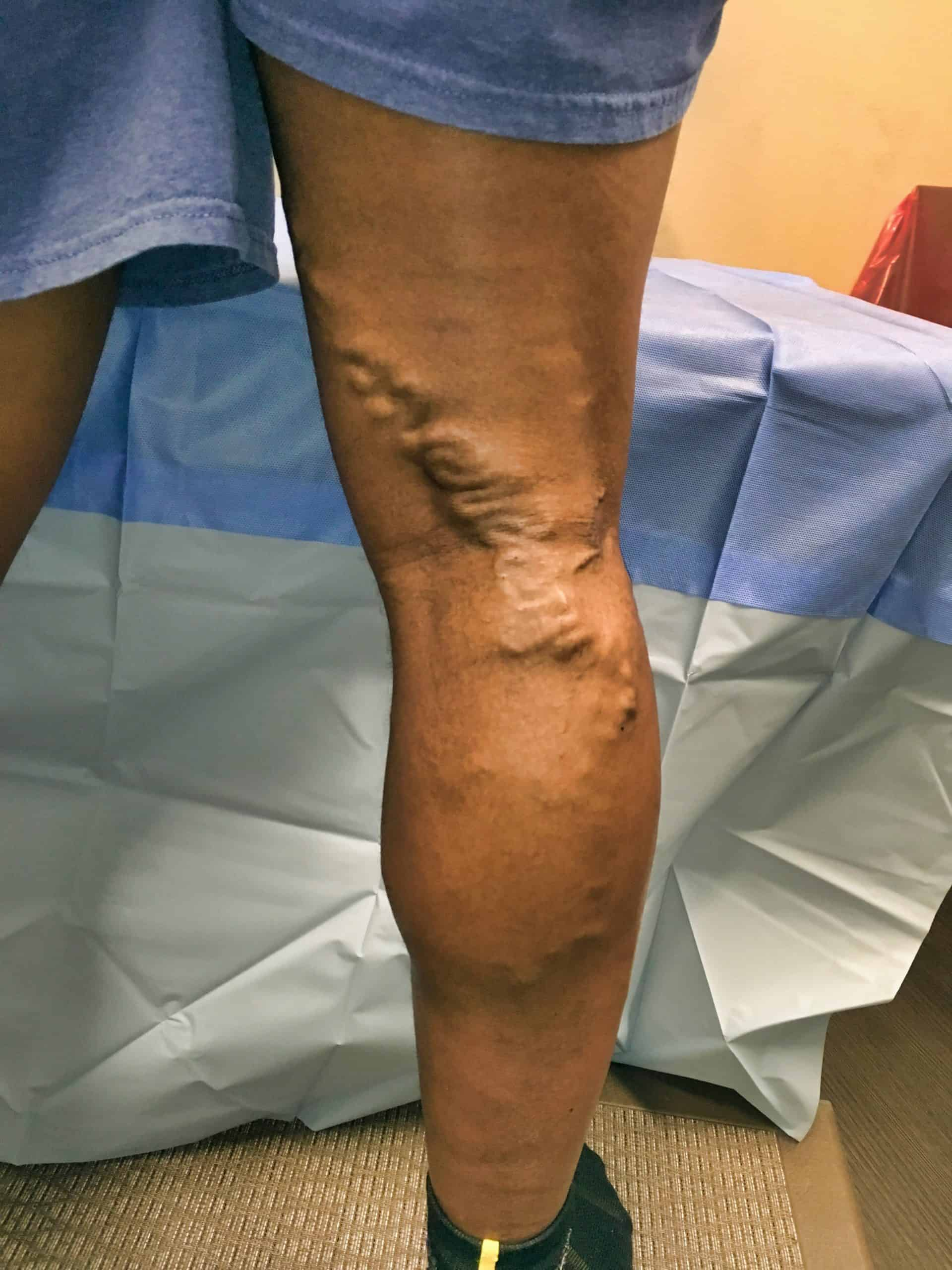 Vericose Veins Before