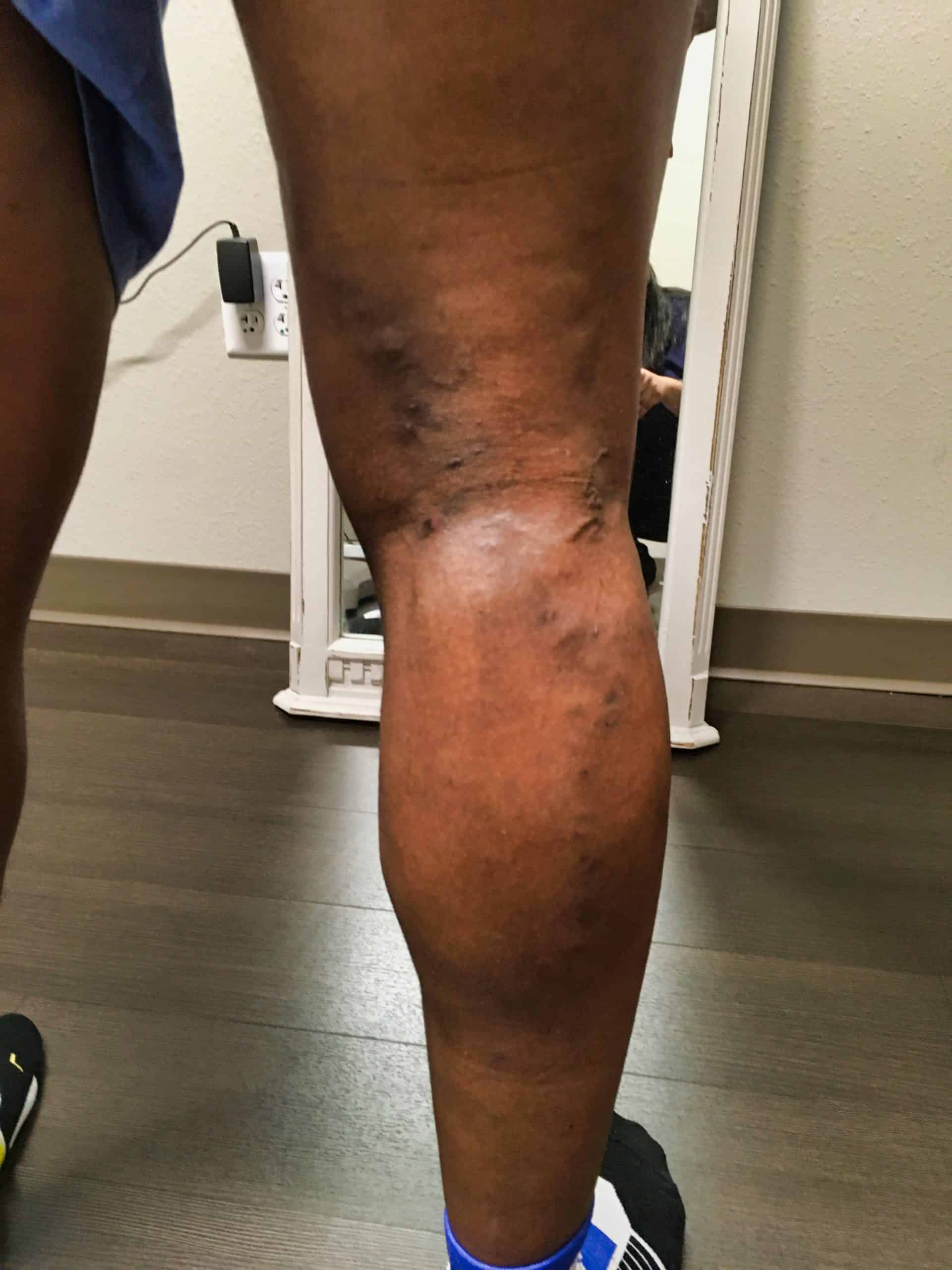 Vericose Veins after 5 weeks of treatment